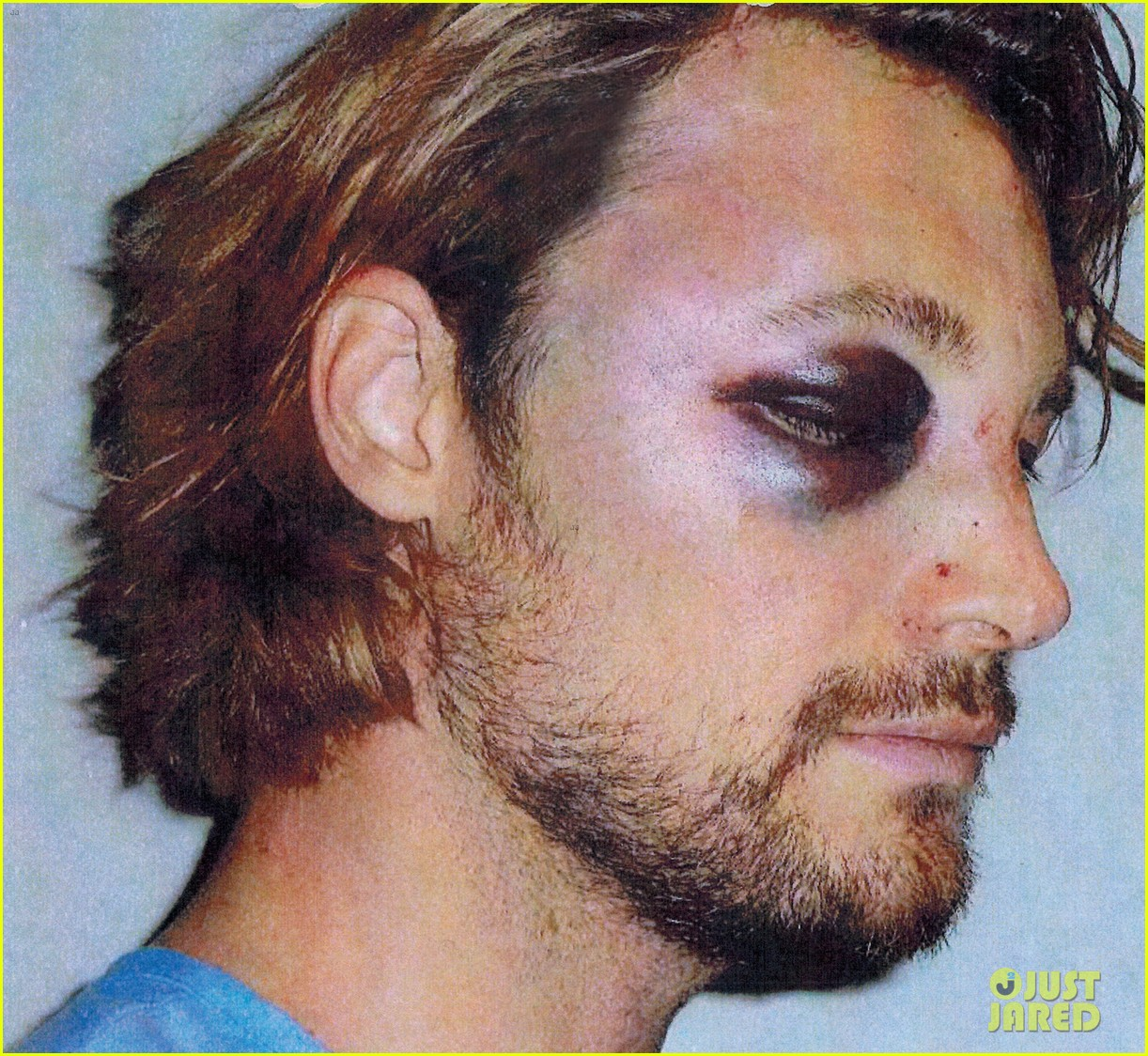gabriel aubry black eye bloody face revealed 012764611