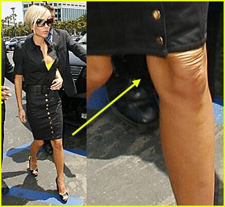Victoria Beckham's Knee Wrinkles
