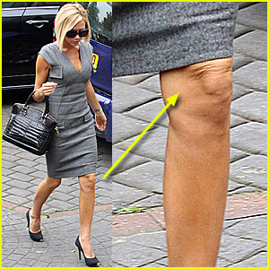 Victoria Beckham's Wrinkly Knees are Back!