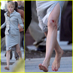 Angelina Jolie Has a Bloody Knee -- Ouch!