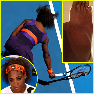 Serena Williams Reveals Swollen Ankle After Bre