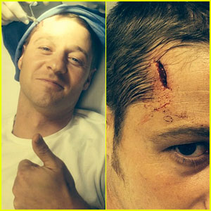Ben McKenzie Suffers Head Injury on 'Gotham' Set