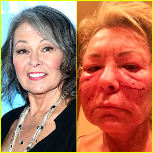 Roseanne Barr Jokes That Bill Cosby Did This to Her Fa