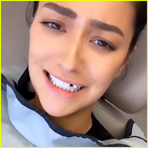 Shay Mitchell Loses a Tooth While Eating a Bagel Sandwich (Photos)