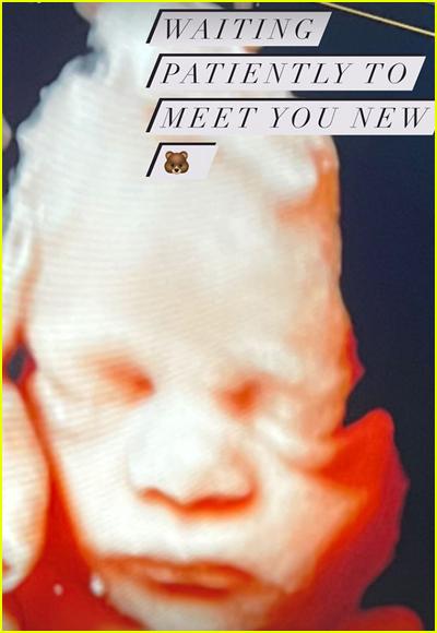 Hilary Duff Sonogram Picture Third Child