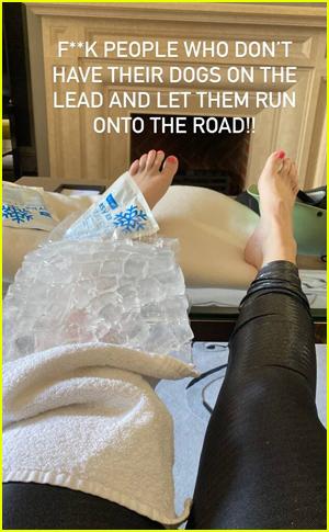 Rebel Wilson icing her leg
