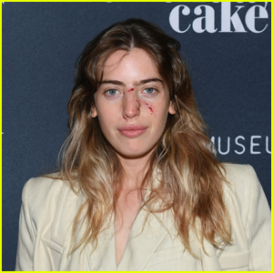 Ewan McGregor's Daughter Clara Walks the Red Carpet With Dog Bite Wounds on Her Face